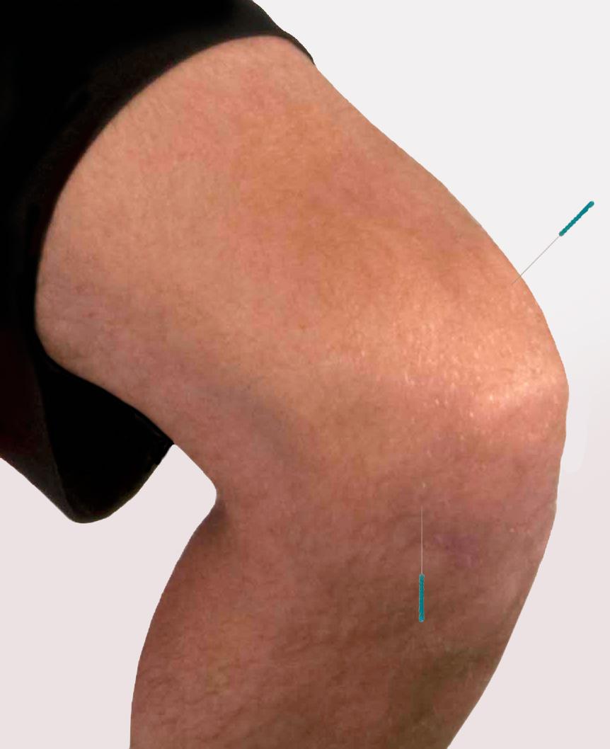 Akupunktur im Spitzensport - Medizinische Simulatoren, Anatomische ...