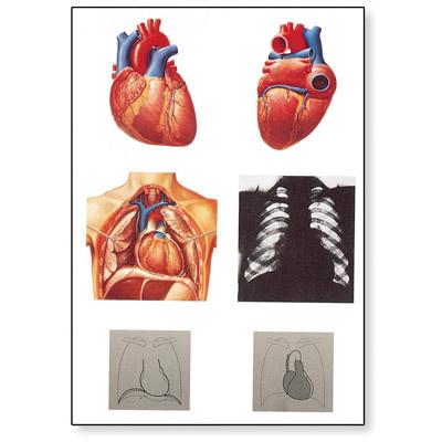 Lehrtafel - Das Herz I, Anatomie - 1001214 - V2053M - Herz-Kreislauf ...