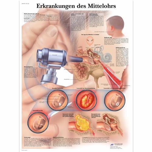 Lehrtafel - Erkrankungen des Mittelohrs - 4006587 - VR0252UU - Hals ...