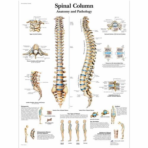 Lehrtafel - Spinal Column - Anatomy and Pathology, 4006657 [VR1152UU], Skelettsystem