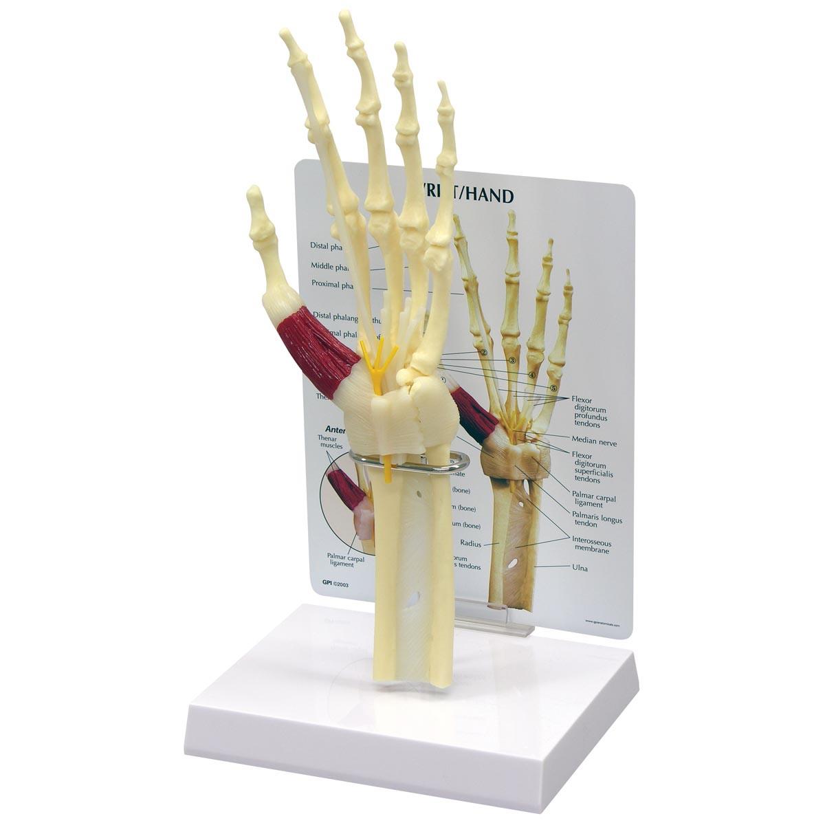 Hand-/Handwurzel-Karpaltunnelsyndrommodell