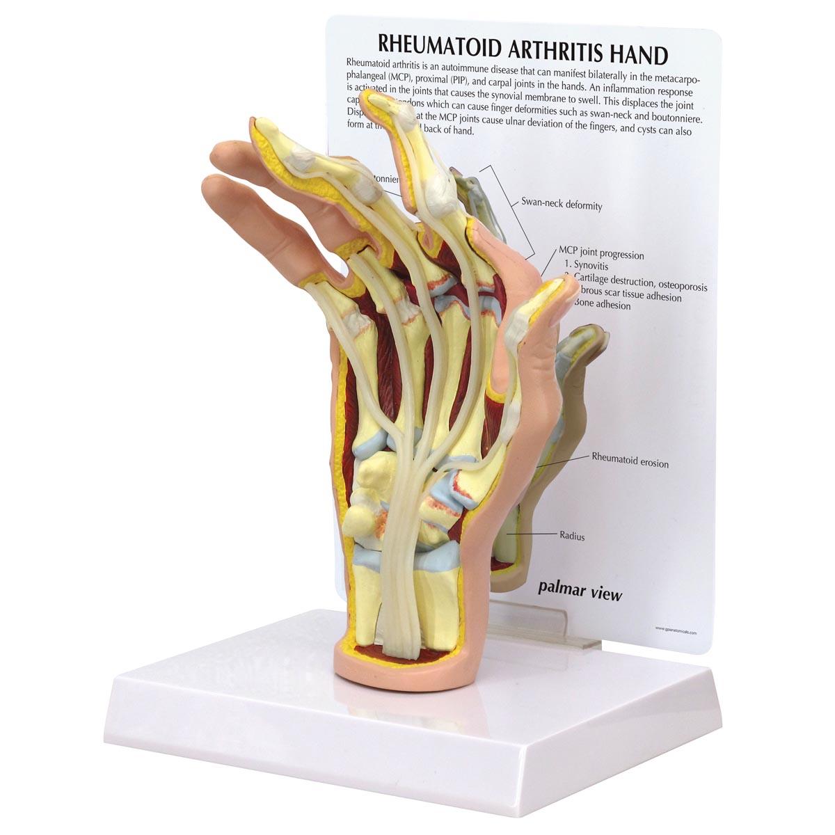 GPI 1931 Handmodell mit rheumatoider Arthritis, Handmodell