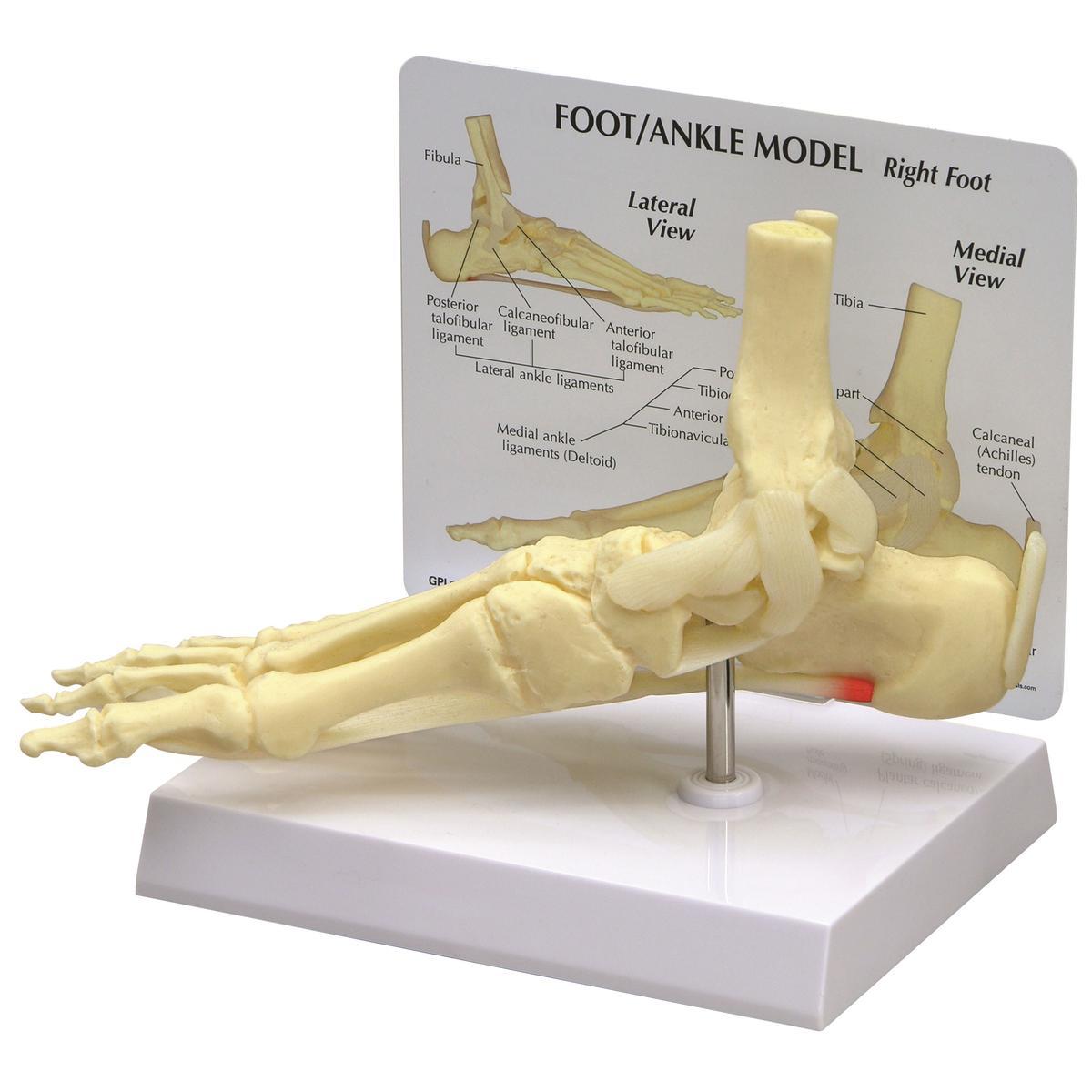 GPI 1980 Modell eines Fuß/Knöchel mit Plantarfasziitis, Fußmodell ...
