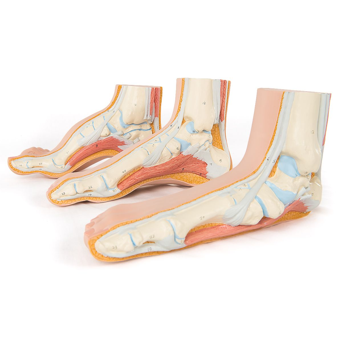 3pcs Fußmodell Mensch Normal Flach Gewölbt Fußmodell Anatomie