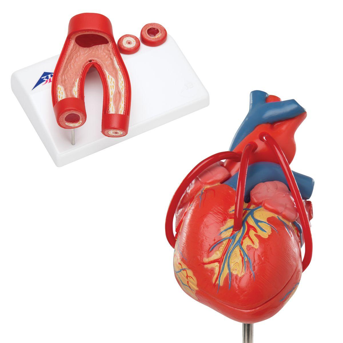 Anatomie Set Herz - 8000845 - Anatomie Sets - 3B Scientific