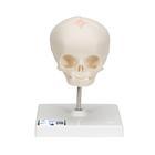 Fetus-Schädel, auf Stativ,A26