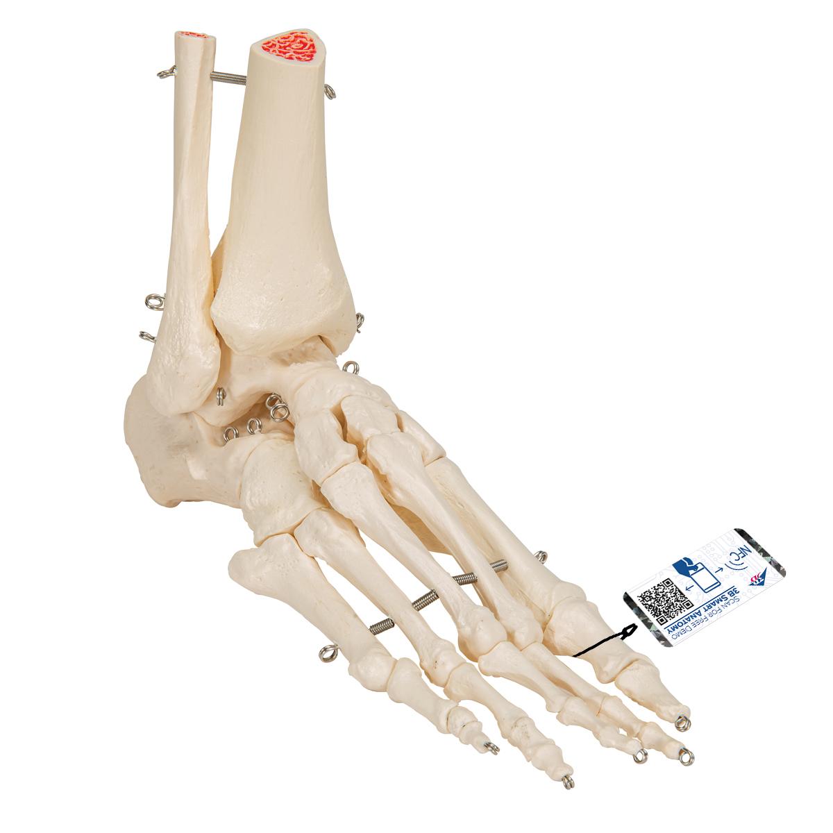 Fußskelett mit Schienbein- und Wadenbeinstumpf, auf Draht gezogen ...