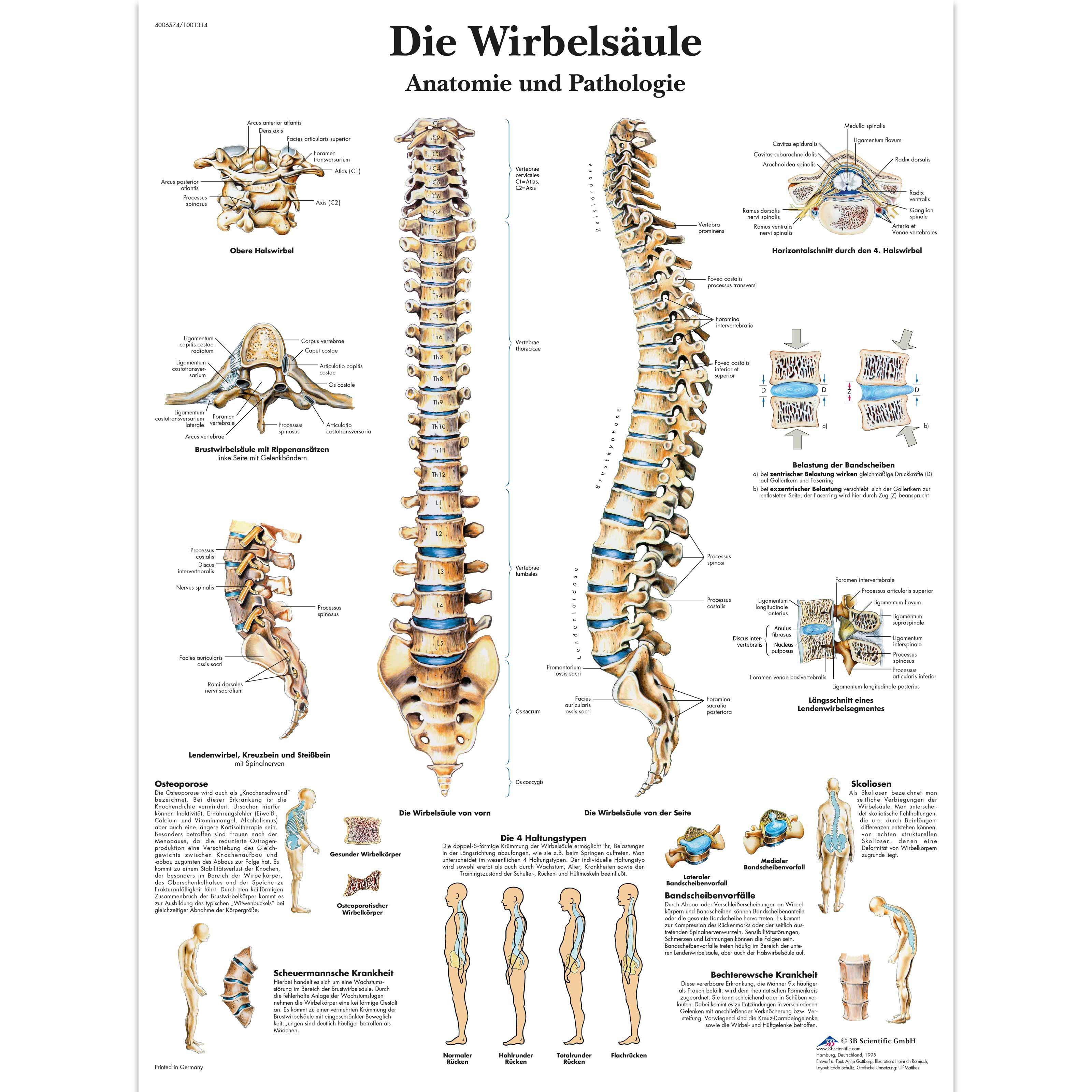 Lehrtafel - Die menschliche Wirbelsäule - Anatomie und Pathologie ...