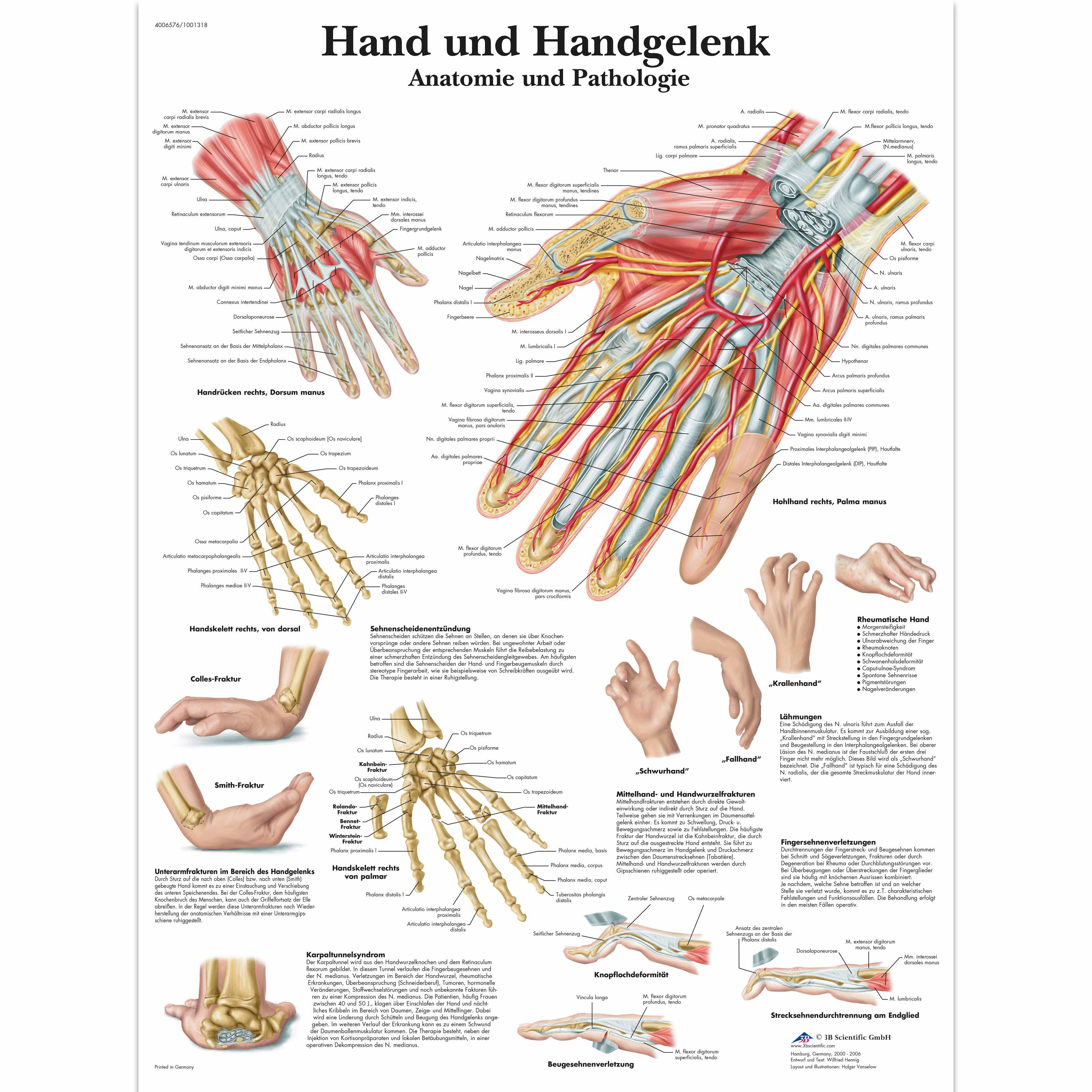 Lehrtafel - Hand und Handgelenk - Anatomie und Pathologie - 4006576 ...