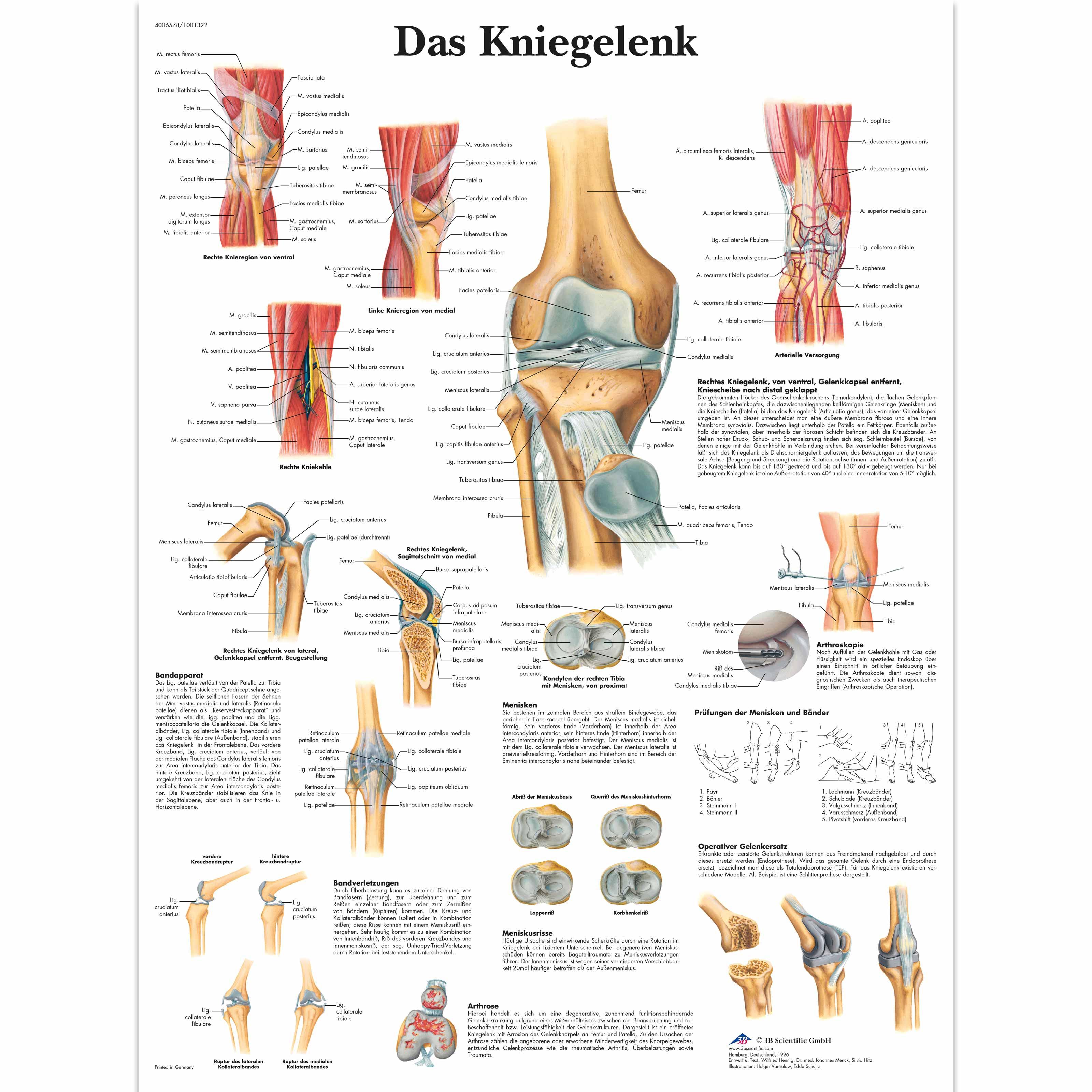 Lehrtafel - Das Kniegelenk - 1001322 - VR0174L - Skelettsystem - 3B ...