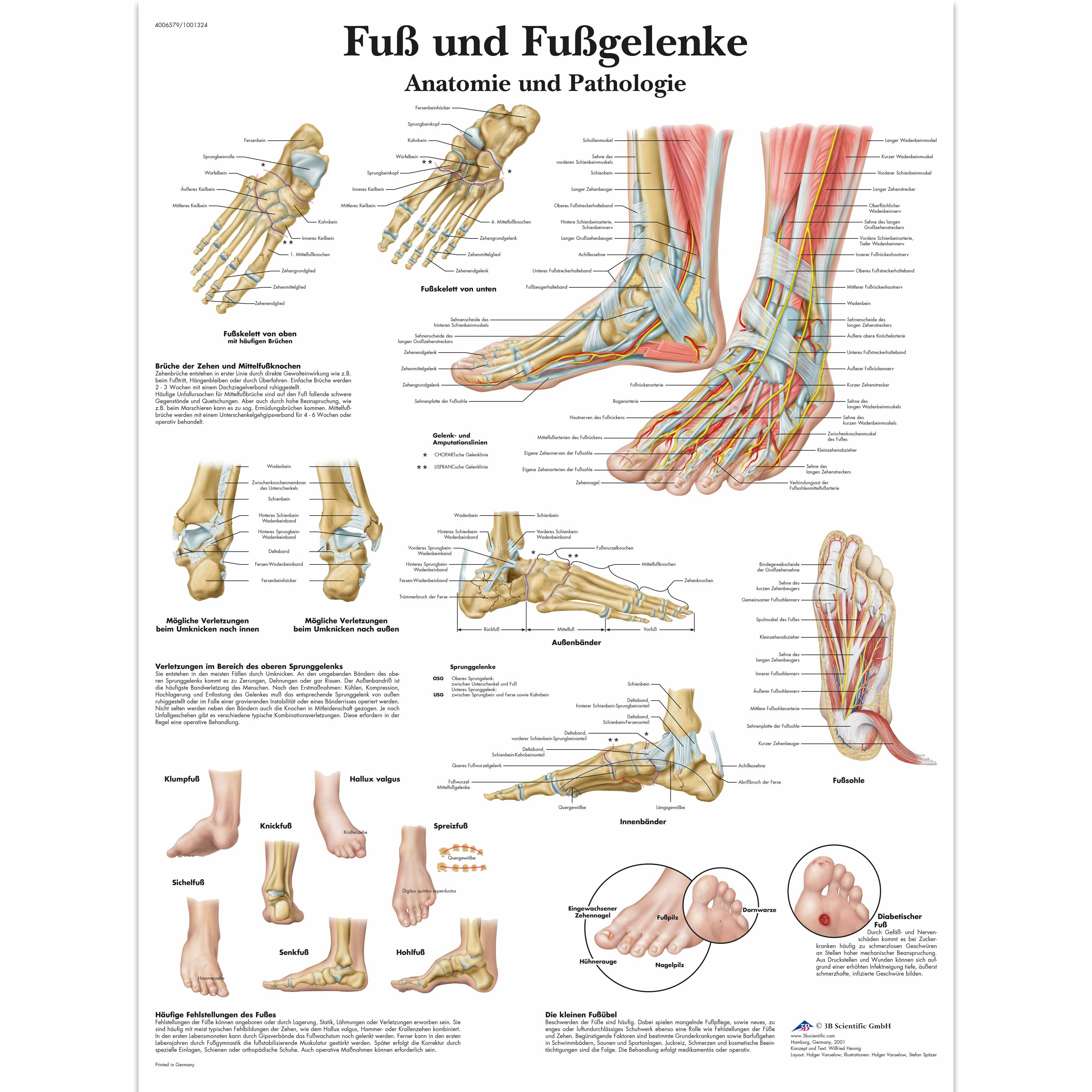 Lehrtafel - Fuß und Fußgelenke - Anatomie und Pathologie - 1001324 ...