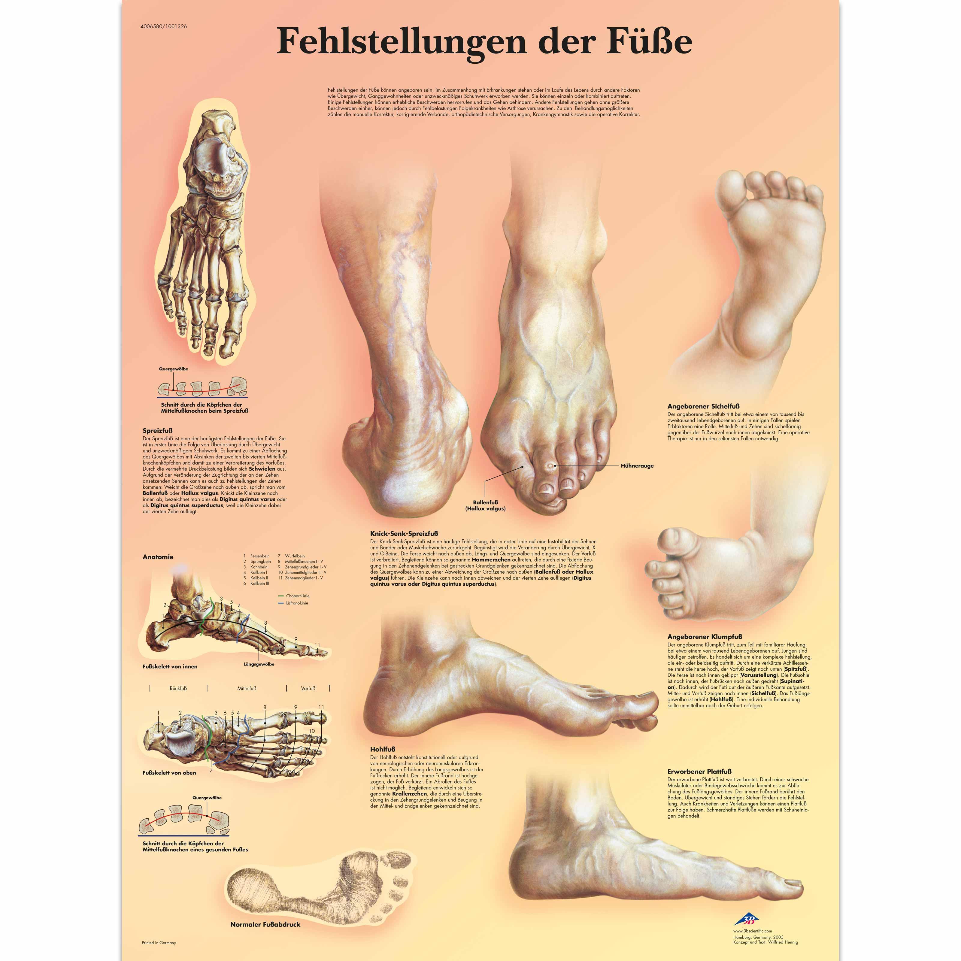 Lehrtafel - Fehlstellungen der Füße - 1001326 - VR0185L ...