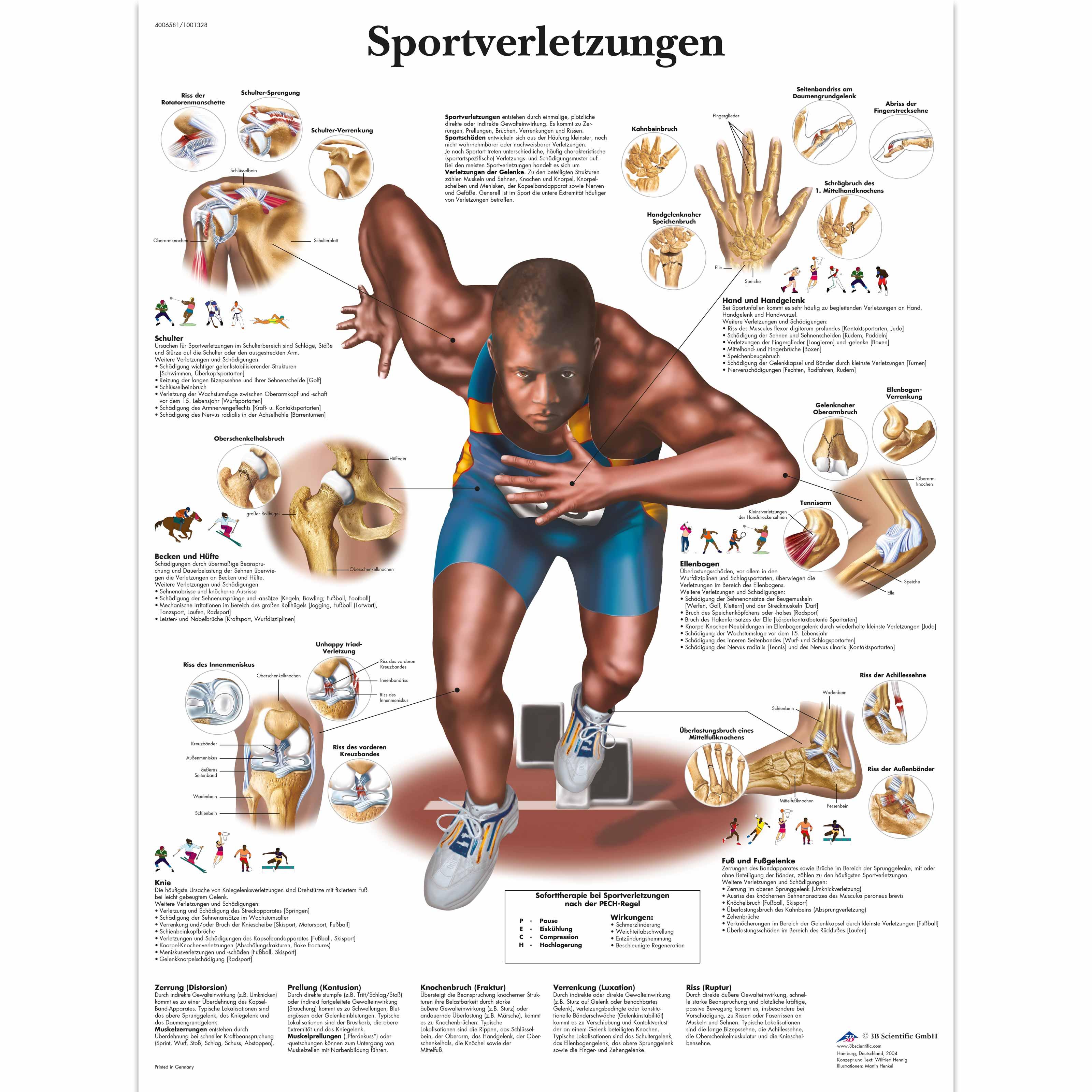 Lehrtafel - Sportverletzungen - 4006581 - VR0188UU - Muskel - 3B ...