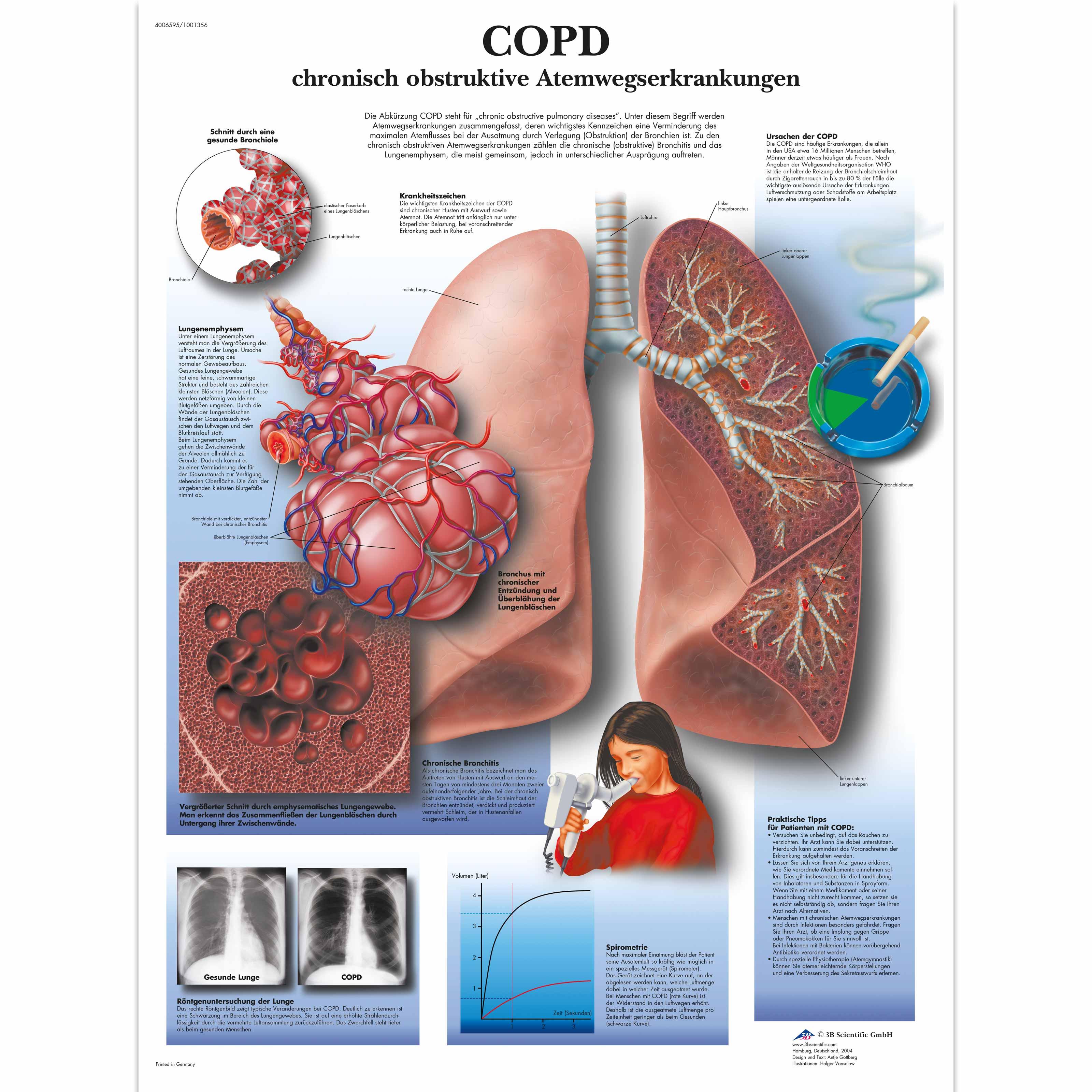Lehrtafel - COPD chronisch obstruktive Atemwegserkrankungen ...
