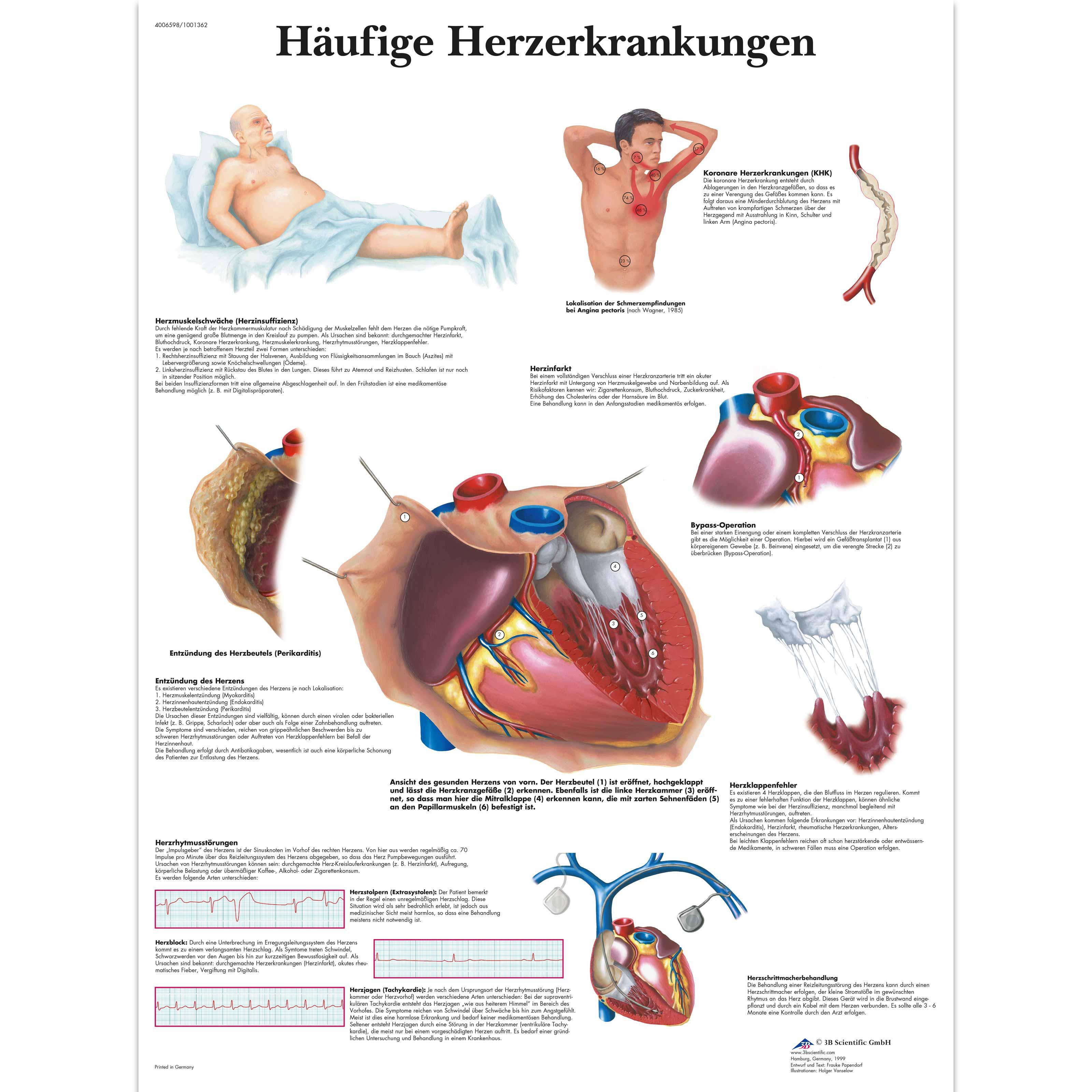 Lehrtafel - Häufige Herzerkrankungen - 4006598 - VR0343UU - Herz ...