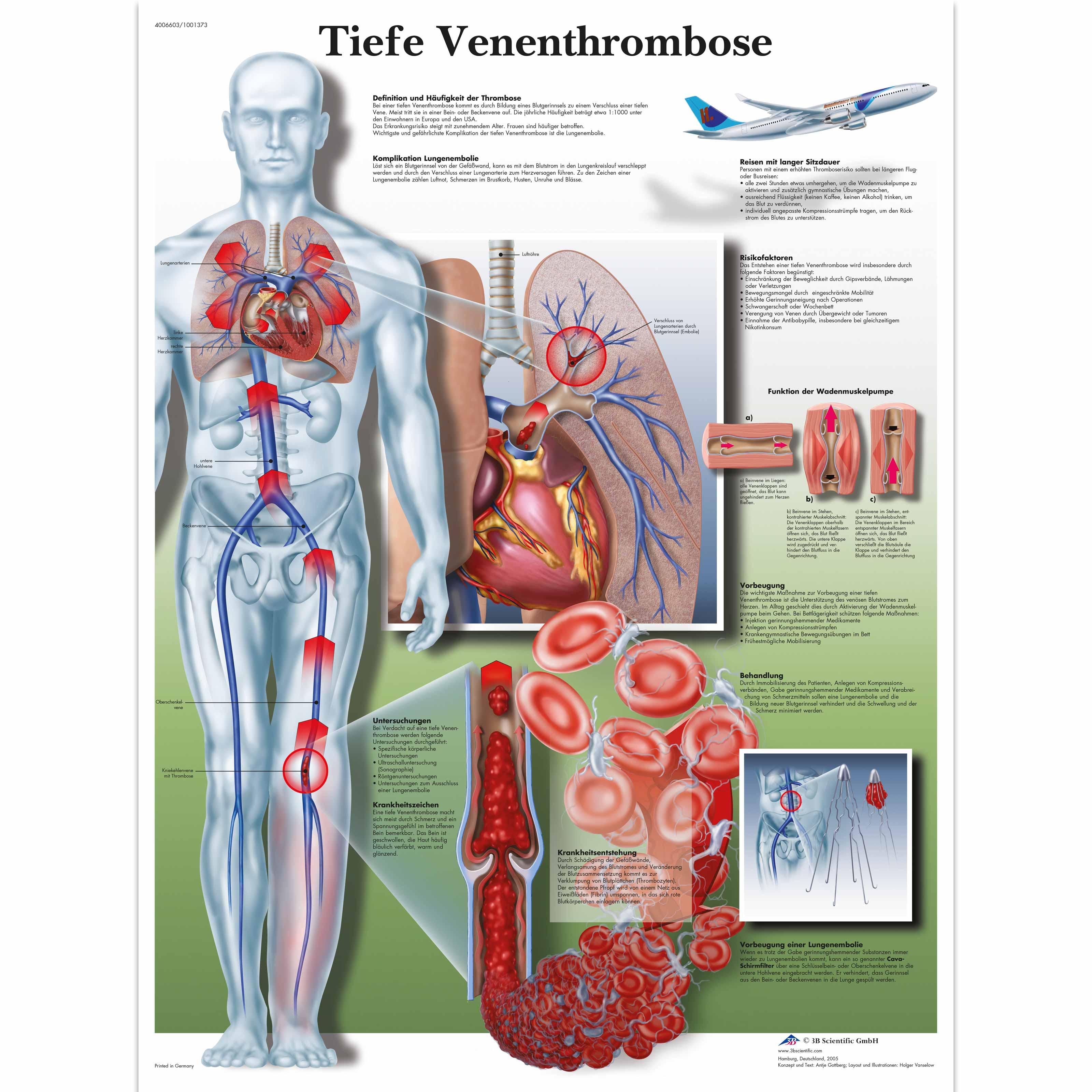 Lehrtafel - Tiefe Venenthrombose - 4006603 - VR0368UU - Herz ...