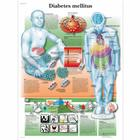 Lehrtafel - Diabetes melllitus,VR0441L