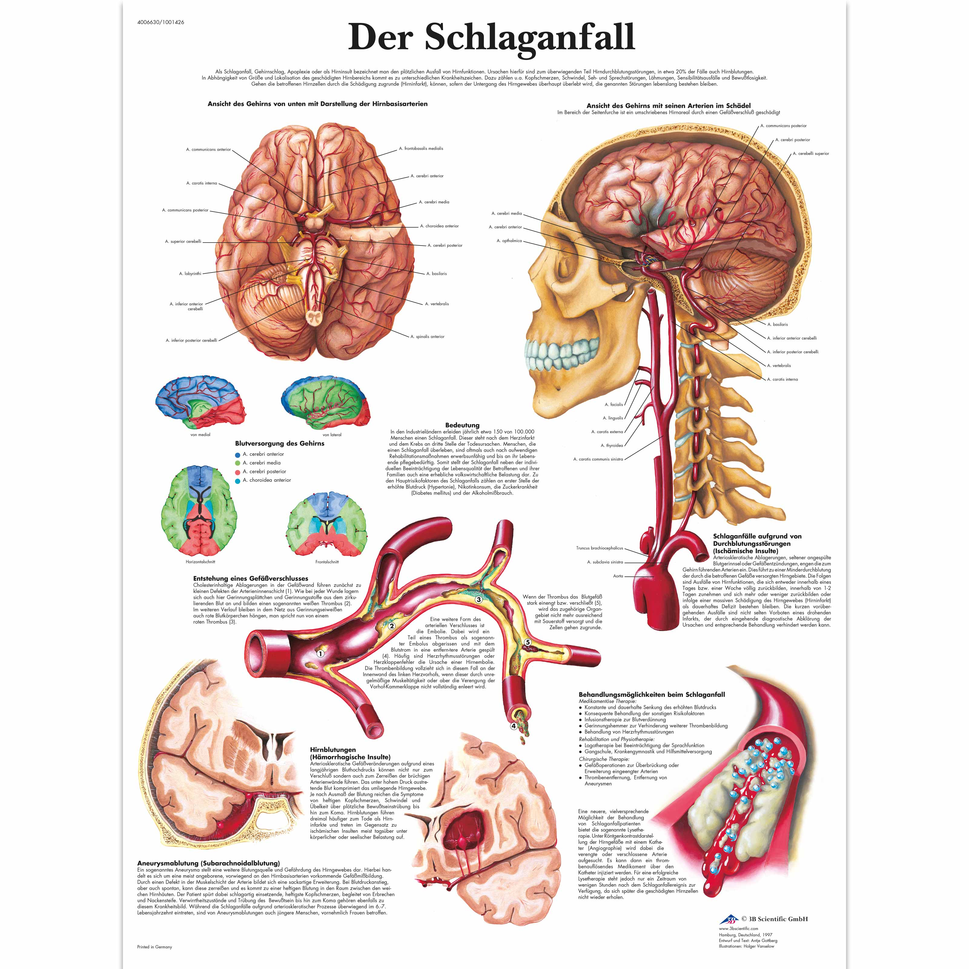 Lehrtafel - Schlaganfall - 4006630 - VR0627UU - Herz-Kreislauf ...