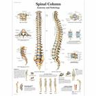 Lehrtafel - Spinal Column - Anatomy and Pathology, 1001480 [VR1152L], Skelettsystem