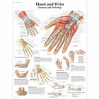 Lehrtafel - Hand and Wrist - Anatomy and Pathology, 4006659 [VR1171UU], Skelettsystem