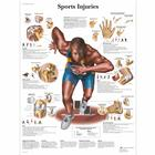 Lehrtafel - Sports Injuries, 1001494 [VR1188L], Muskel