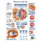 Lehrtafel - Diseases of the Eye, 1001498 [VR1231L], Augen