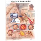 Lehrtafel - Diseases of the Middle Ear, 1001506 [VR1252L], Hals, Nasen und Ohren(HNO)