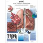 Lehrtafel - COPD Chronic Obstructive Pulmonary Disease, 1001522 [VR1329L], Atmungssystem