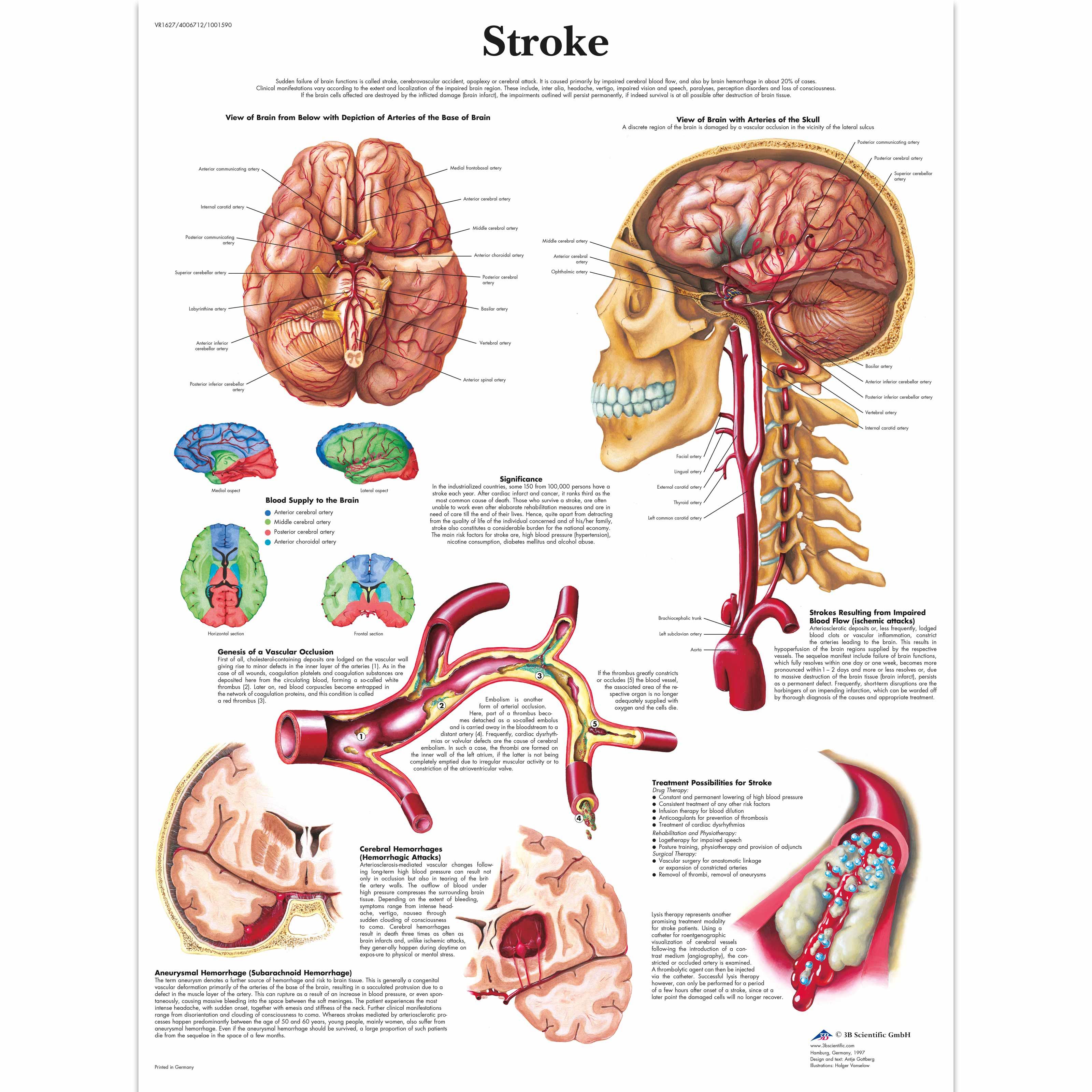 Lehrtafel stroke