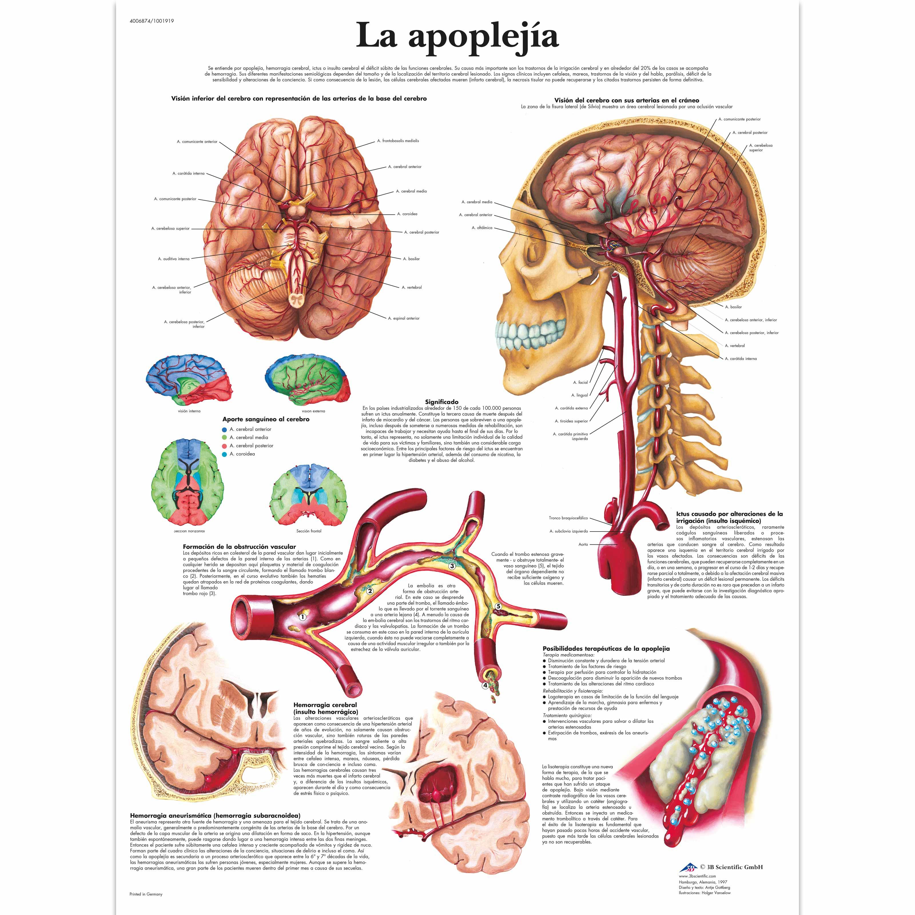 Lehrtafel - La apoplejía - 1001919 - VR3627L - Herz-Kreislauf-System ...