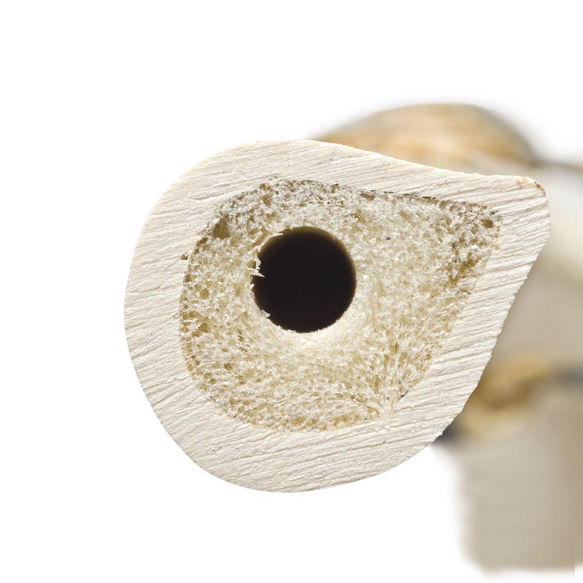 ORTHObones Premium Unterarmknochen (Radius), rechts - 1005122 ...