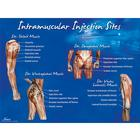 Intramuscular Injection Sites Poster, 1018427 [W44783], Injektionen und Punktion